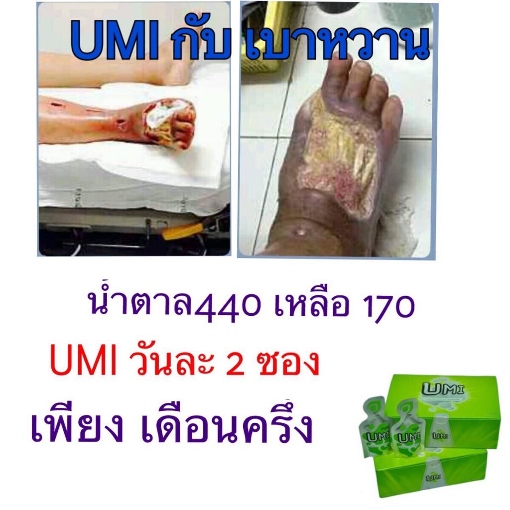 agel-umi-case-13